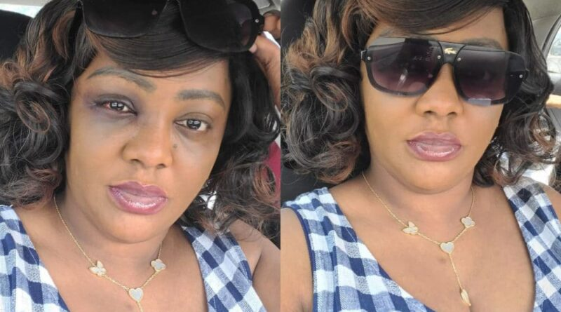 Fans tackle Helen Paul for claiming her 'black eye' was from an accident